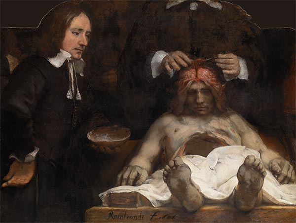 The Anatomy Lesson of Dr Joan Deyman, 1656 | Rembrandt| Gemälde Reproduktion